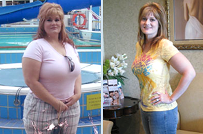 Inland Empire Weight Loss Surgery Surgical Arts Of Inland Empire